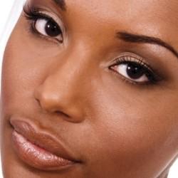 Understanding Vitiligo and Its Treatment