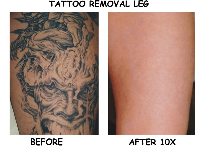 Laser Treatment For Tattoo Removal - All You Need To Know Before Undergoing One