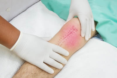 Tips For Knee Rehab Success