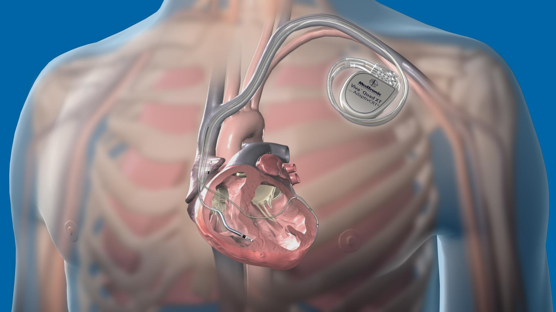 Cardiac Procedures