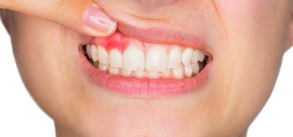 Why Your Gums Bleed