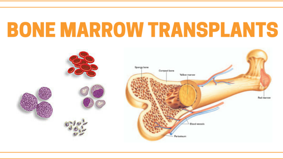 5 Things To Know Before A Bone Marrow Transplant